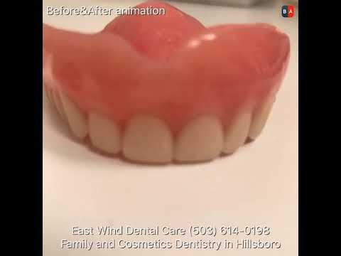 Dentures Near Me >> Dentures Near Me Youtube
