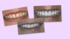 """Temporary Veneers as a """"Trial Smile"""" - 5 Star Dental Group - San Antonio"""