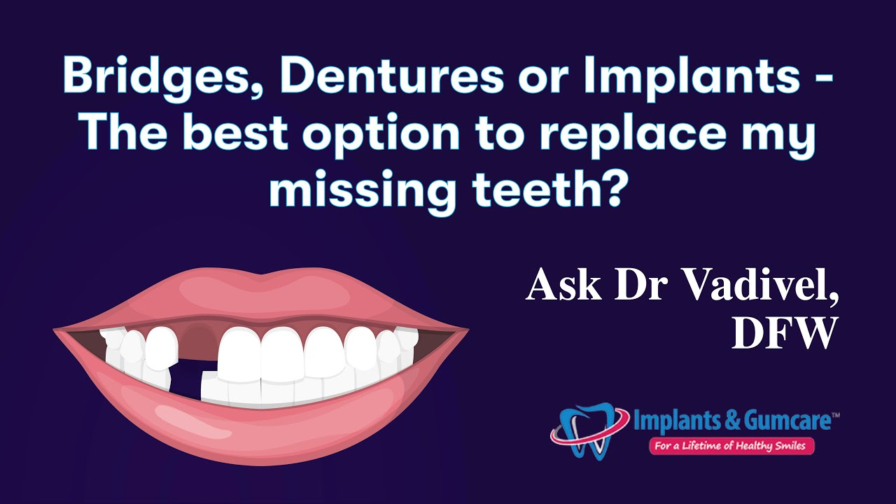 Bridges, Dentures or Implants - The best option to replace my missing  teeth? Ask Dr Vadivel, DFW