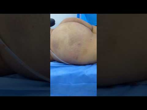 Large Buttocks: After Butt Implants and Hip and Butt Fat Transfer
