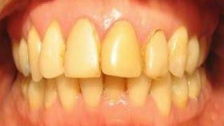4 Alimentos que nos ponen los dientes amarillos