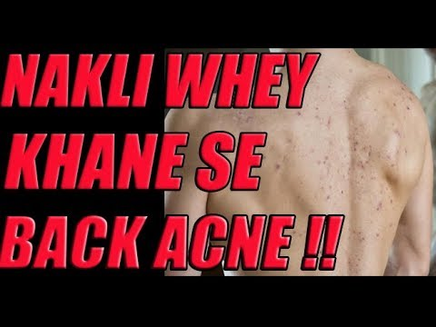 Whey Protein Causing Acne Problems Youtube