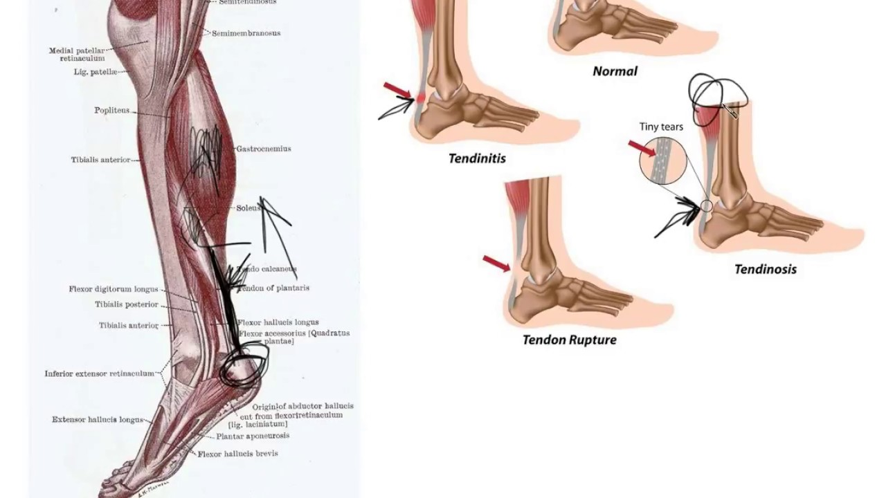 How to Safely Stretch Your Achilles Tendon
