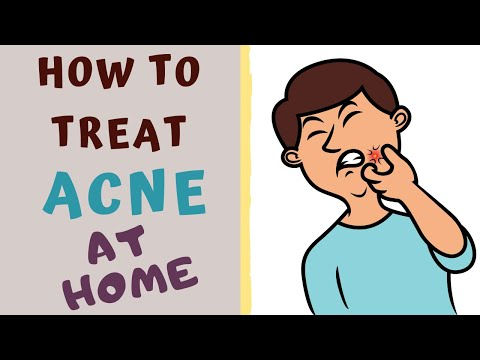 HOW TO TREAT ACNE AT HOME. Acne- All you need to know.