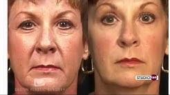 """BOTOX® Bill"" Destin Plastic Surgery's BOTOX Specialist"
