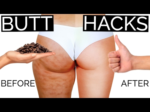 12 Butt and Cellulite Hacks Every Girl Secretly Wants to Know | Hack My Life #17