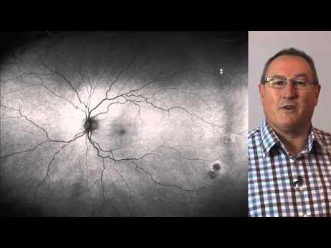 Peripheral Retinal Degenerations (2013) - Simon Browning B.Sc. (Hons) MCOptom