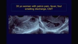 Acute Pelvic Pain in the Non Pregnant Female