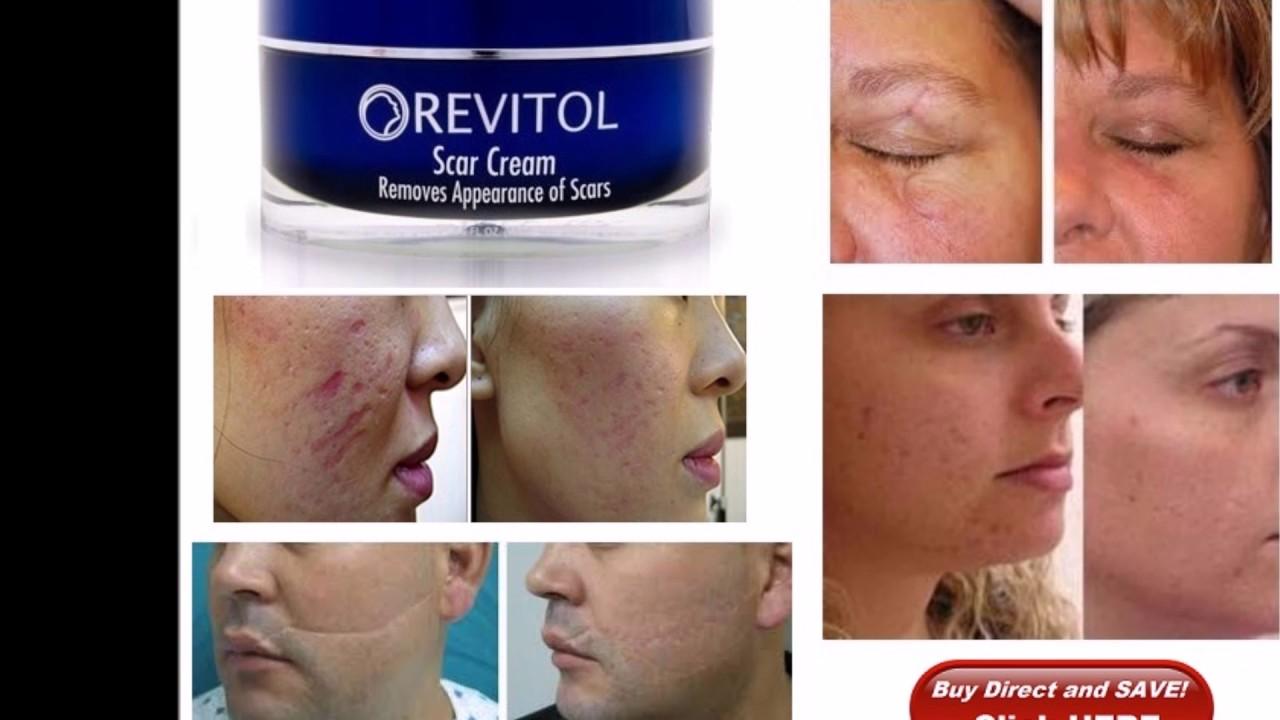 Revitol Scar Cream Removal Cream Acne Scar Cream Best Youtube