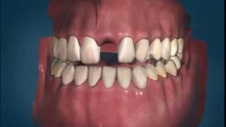 Имплантаты. Стоматология