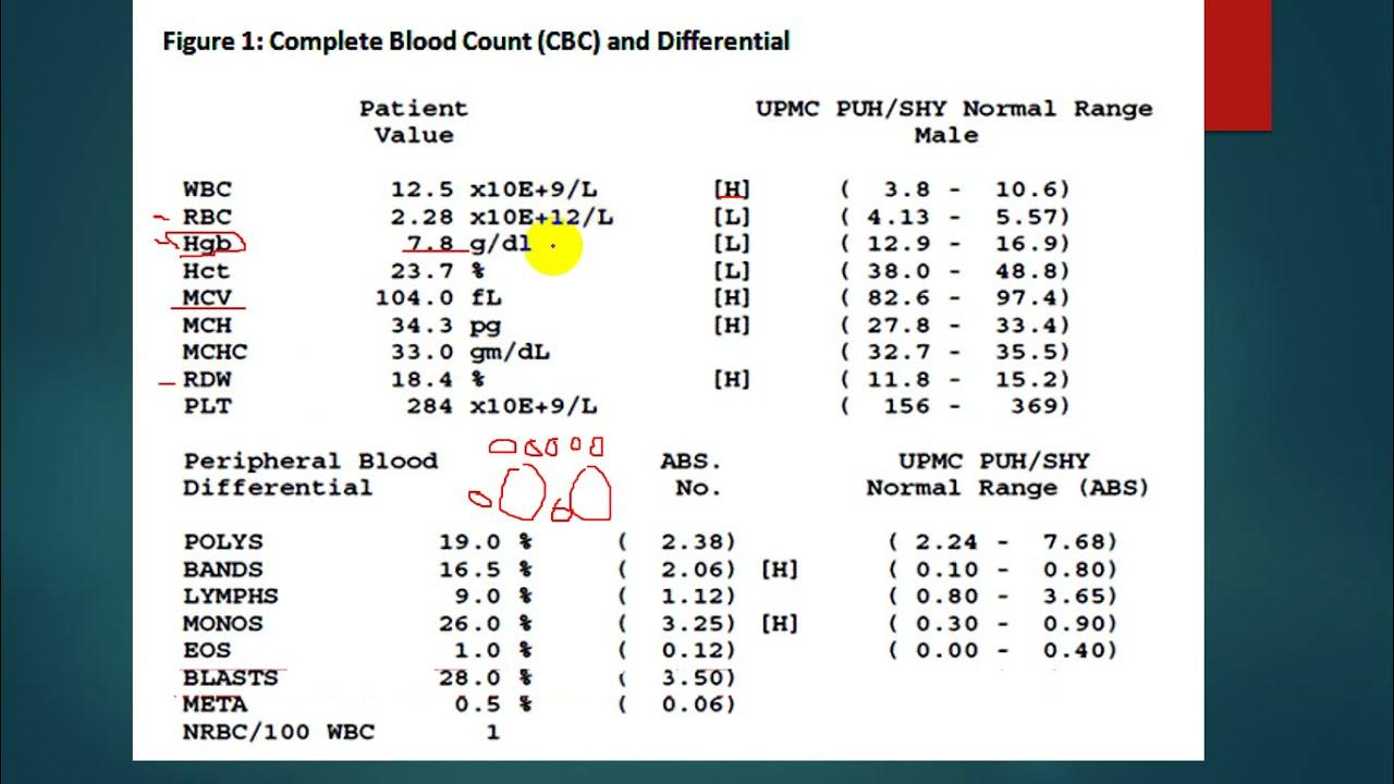 Anemia Complete Blood Count Cbc Blood Film قراءة فحص الدم ومعرفة نوع فقر الدم بسهولة Youtube