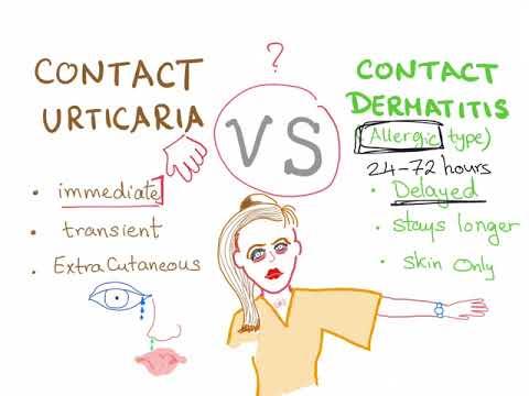 Contact Urticaria Vs Contact Dermatitis