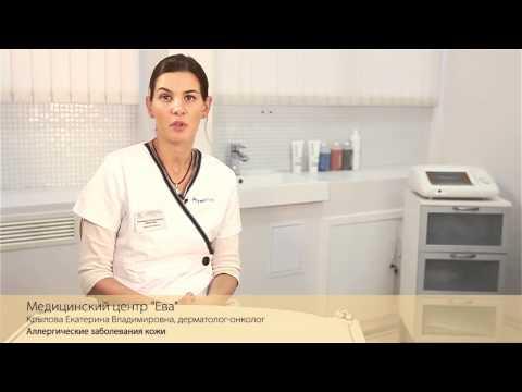 Аллергические заболевания кожи