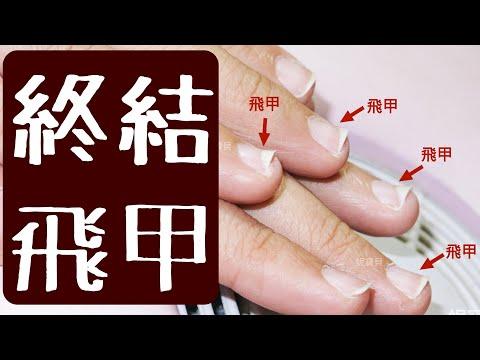 飛甲是什麼?向上的指甲形狀該如何矯正?雪橇甲、翹甲、甲型往上翹、指甲往上飛的處理!