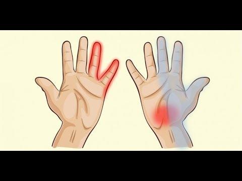 건강 당신 손이 일러 주는 건강 적신호 7개