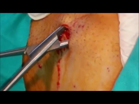 Lipoma Right Axilla: No scar