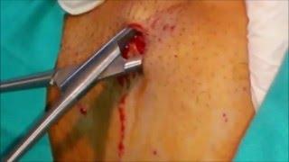 Lipoma Right Axilla: No scar    كيس دهنى بالابط