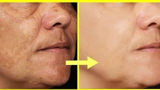 Get Rid of Freckles (چھائیاں) Pigmentation, Best Creams and Home Remedies Urdu Hindi