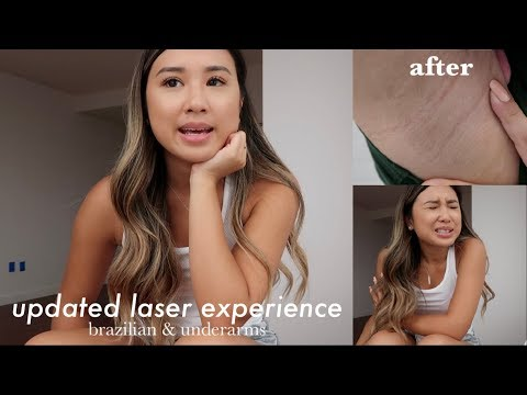 Updated Laser Hair Removal Experience Brazilian Underarms