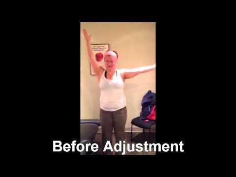 OTZ Chiropractic Adjustment for Frozen Shoulder Syndrome