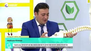 Onurğa kanalı disk yırtıqları - HƏKİM İŞİ 19.06.2018