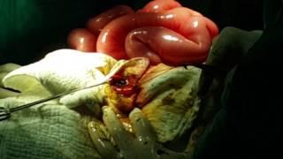 Barsak ameliyatı ( ileus ) Barsakların yıkanması