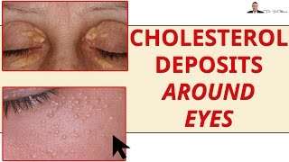 Cholesterol Deposits On Eyelids & Around Eyes- Xanthelasma