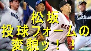 松坂大輔 ここまで変わってしまうのか…投球フォームの変貌ッ!!
