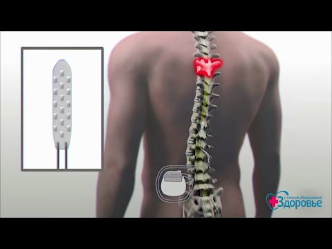 Здоровье. Достижения медицины. Реабилитация после паралича.  (04.11.2018)