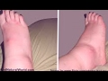 3 Natural Remedies For Swollen Ankles Legs And Feet mp3
