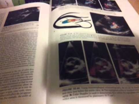 Echocardiography books must haves!!!