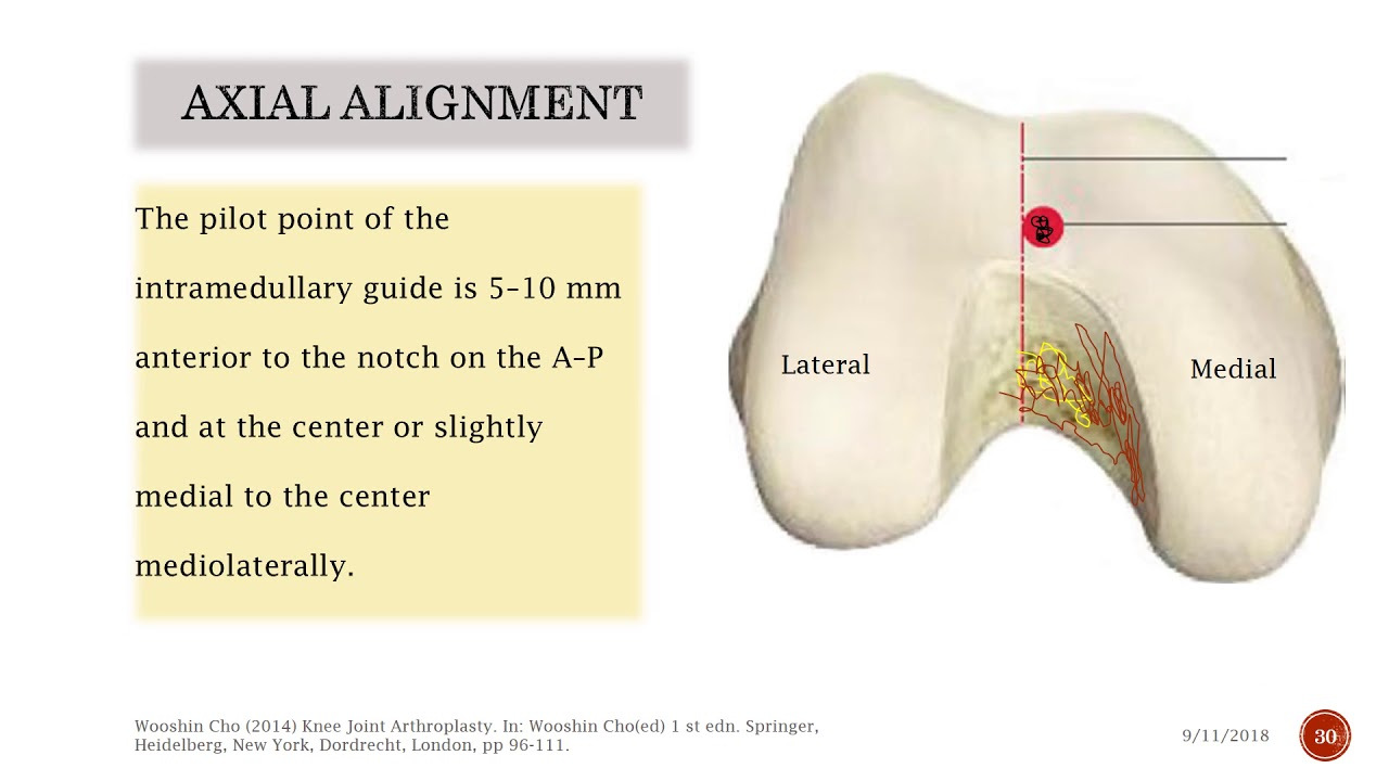Total Knee Arthroplasty with all biomechanic basis  and logic. ( Part 2 )