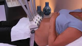 SculpSure -  Laser lipólise não-invasiva!