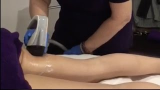 Body Contouring & Cellulite Reduction | Illuminate Face & Body Bar