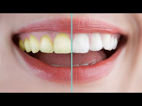 best-way-to-teeth-whiten,-get-whitening-teeth-in-3-minute,treatment-at-home