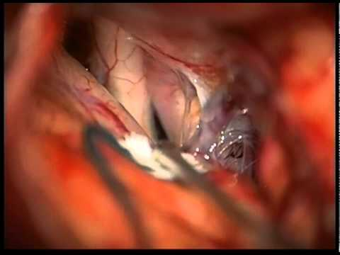 cerebral aneurysm clipping pcom superior projection youtube