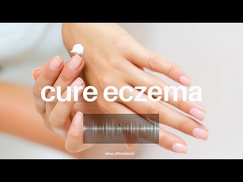 Repeat Get Rid of Eczema Fast! Subliminal | Detoxication