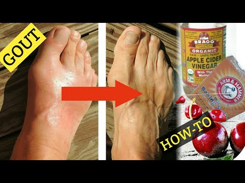 top-3-home-remedies-for-gout!-apple-cider-vinegar-for-gout,-baking-soda-for-gout,-cherries-for-gout
