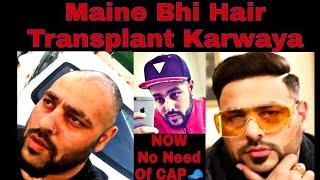Case Study: Punjabi Singer BADSHAH Ka Hair Transplant || Bollywood Celebrity Hair Transplant