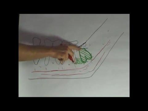 necrosi dentale focale (Dr. Matthew Carpenter explains dental cavitations)