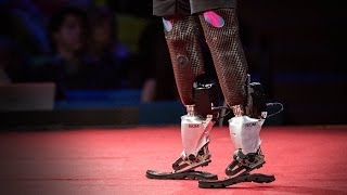 New bionics let us run, climb and dance | Hugh Herr(Hugh Herr is building the next generation of bionic limbs, robotic prosthetics inspired by nature's own designs. Herr lost both legs in a climbing accident 30 years ..., 2014-03-28T23:07:14.000Z)