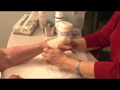Custom-made Splint For Hand Injury Patient - Ellen Kolber, Hand Therapist