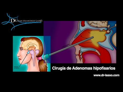 adenoma hipofisis pdf