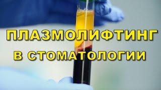 Стоматология Киев. Плазмолифтинг в стоматологии(, 2016-02-19T09:03:46.000Z)