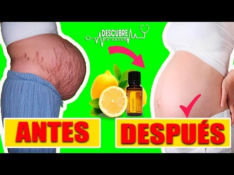 ?Cómo quitar las feas estrías en el embarazo con remedios caseros y Naturales