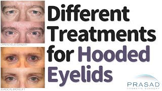 Different Procedures for Treating Hooded Eyelids and Heavy Brows