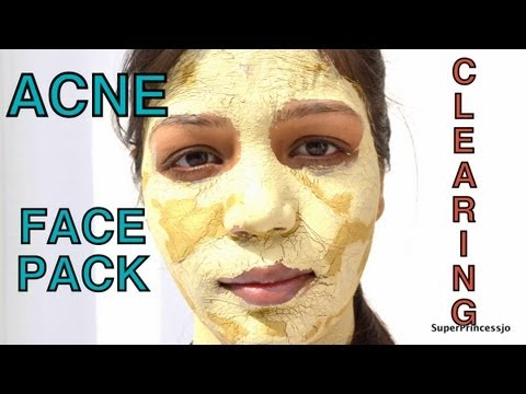 how to clear acne at ome