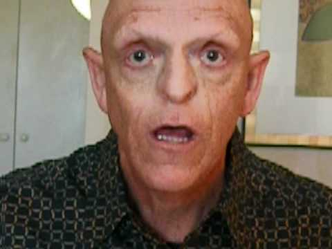 michael berryman enfermedad