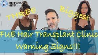 3 BIG WARNING SIGNS  FUE Hair Transplant Clinics, ARTAS, Proscar