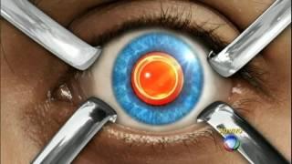 Oculares custos Microflebectomia sob